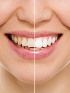 Weiße Zähne sind ein wichtiger Faktor, wenn es um das Aussehen geht. Wir habe einige Tipps für Sie, die  in kurzer Zeit ein perfektes Lächeln zaubern.