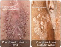 Condyloma Acuminata Cauliflower-like coalescence of warts HPV (6, 11) HPV: most common STD