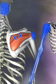 Did you know that trigger points in the infraspinatus muscle can refer pain into the front of the shoulder and down the arm? What does this mean? It means that if the muscle gets chronically tight, you may feel pain on the front. So you could rub the front of your shoulder all day long, and it wouldn't help the problem at all. Trigger points and referral patterns are tricky and useful to know.