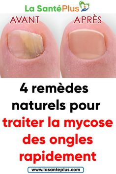 4 natural remedies to treat nail fungus quickly Herbal Remedies, Home Remedies, Natural Remedies, Nail Health Signs, Infection Fongique, Health Tips, Health Care, Vitamin Deficiency, Nail Fungus