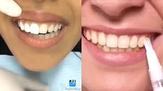 5 second crafts pearly whites whitening Top 5 Teeth Whitening Hacks and DIY White colored Teec Baking Soda Teeth, 5 Min Crafts, Teeth Bleaching, Natural Teeth Whitening, I Am Beautiful, Hacks, Daily Beauty, Pure Products, Diy Products