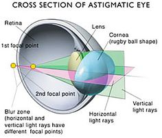 Astigmatism is a lens or mirror defect in which the size and shape of an image vary for different points of focus. Test Visual, Opthalmic Technician, Eye Retina, Eye Anatomy, Gross Anatomy, Eye Study, Sensory Rooms, Sensory Activities, Eye Facts