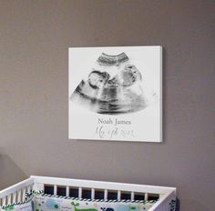 Sonogram Print, Nursery Wall Art, A Personalized Ultrasound Canvas Frame, Ultrasound Wall Decor by CanvasVows on Etsy https://www.etsy.com/listing/476440702/sonogram-print-nursery-wall-art-a