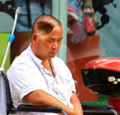 China's Huanqiu website recently posted pictures of incredible people living with holes in their heads. This man from Sichuan was in some sort of accident