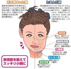 アデノイド顔貌の方いますか?