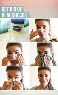 Blackhead Removal Anyone who has ever suffered from blackheads understands how difficult they can be to get rid of.