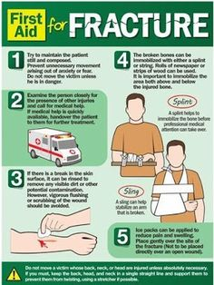 First Aid For Fracture. If someone next to you has a fracture, DON'T PANIC! Ther… First Aid For Fracture. If someone next to you has a fracture, DON'T PANIC! There are some things that you can do. For more tips… Continue Reading → Medical Help, Medical Information, First Aid Poster, First Aid Cpr, First Aid Treatment, Emergency First Aid, Emergency Care, Bone Fracture, Emergency Preparedness