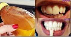 Sirke ile Dişleriniz 2 Dakikada Bembeyaz Olacak. | Hatunzade.Com