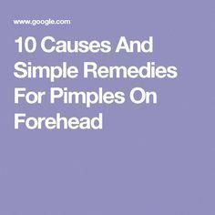 Acne is a common skin condition seen in both men and women. In this article, we have come up with causes and few home remedies to get rid of forehead acne. Pimples Under The Skin, How To Get Rid Of Pimples, Home Remedies For Pimples, Natural Acne Remedies, Pimples On Forehead, I Love Makeup, How To Treat Acne, Acne Prone Skin, Popular Pins