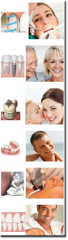 Dental Implants Mexico | Cosmetic Dentists in Cancun | Dentaris  #Dental #Implants #oralcare
