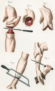 Illustration of arm amputations. Civil War era. 'Broken Bodies, Suffering Spirits' at the Mütter Museum - NYTimes.com