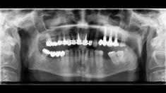 immer wieder sagen menschen zu mir, wieso ist dieser zahn zu retten und der nicht? wieso sagt der eine zahnarzt ja, der andere nein - das hat viele gründe, ein paar besprechen wir im video. Zahn, Videos, Movie Posters, People, Film Poster, Billboard, Film Posters