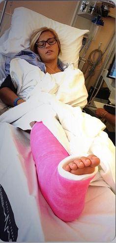 Sexy leg cast