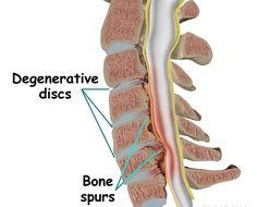 Bone spurs (osteophytes)