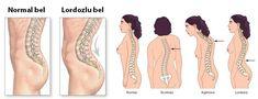 obat-spondylosis-lumbalis-paling-ampuh