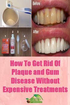 Minion Scoop: How To Get Rid Of Dental Plaque and Whiten Your Teeth Without Expensive Treatments Teeth Health, Dental Health, Oral Health, Health Care, Healthy Teeth, Dental Care, Health Heal, Healthy Tips, Scar Removal Cream
