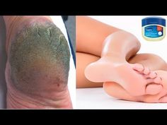 Home remedy for cracked heels. This is an easy home remedy which will help you get rid of cracked heels overnight. It is an easy home remedy for cracked heel. Natural Remedies For Allergies, Allergy Remedies, Acne Remedies, Cracked Heel Remedies, Vicks Vapor Rub, Vaseline Uses, Cracked Skin, Cracked Feet, Acne Skin