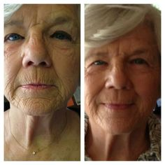 After 45 days of Nerium!!!  30 Day Money Back Guarantee. Contact me for more info: wendhend@aol.com.  Or visit my website: wwendy117.nerium.com
