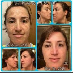 Rodan + Fields Reverse Regimen for lightening and brightening skin along with the Amp MD roller will change your skin!  No joke!   https://winwithyourskin.myrandf.com/Pages/OurProducts/GetAdvice/SolutionsTool