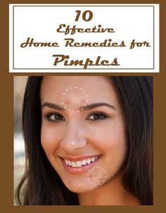 10 Effective Home Remedies for Pimples: