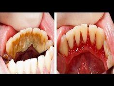 Elimina el sarro de tus dientes, tú mismo en casa, de manera fácil. - YouTube