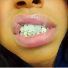 girls with grillz teeth - Google Search
