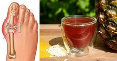 The gout is an issue that is seen in people who have digestion problems since the uric acid makes arthritis in the small bones and joints in the feet. Other gout effects are swelling and Colon Cleanse Detox, Natural Colon Cleanse, Gout Remedies, Natural Health Remedies, Gota A Gota, Gout Recipes, Types Of Arthritis, Uric Acid, Foods To Avoid