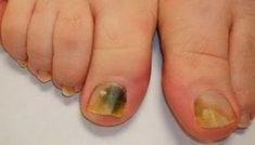 W większości przypadków grzybica stóp spowodowana jest długotrwałą ekspozycją na wilgoć i niefizjologiczne pH skóry.