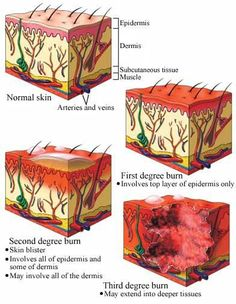 Guide to Burn Degrees: Shows how the skin reacts to varying levels of burns, useful for determining skin texture