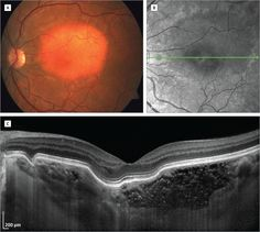 Enhanced Depth Imaging–Optical Coherence Tomography of Choroidal Osteoma. JAMA Ophthalmol. 2015;133(3):e143487. doi:10.1001/jamaophthalmol.2014.3487.