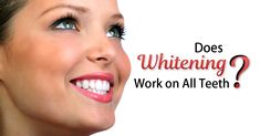 No, teeth whitening does not work for all, which is why it's important to talk to your dentist before deciding to whiten your teeth