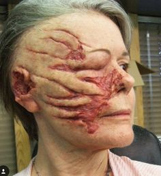 application on the pre-surgery look of our chimp attack victim on Nip/Tuck, before blood was added. We also built a fake head of the… Sfx Makeup, Costume Makeup, Makeup Art, Halloween Make Up, Halloween Face Makeup, Monster Makeup, Horror Makeup, Maquillaje Halloween, Theatrical Makeup