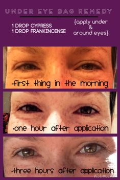 How To Decrease Under Eye Puffiness With Essential Oils