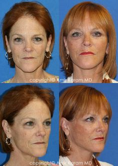 Consider a fat transfer procedure in San Diego - La Jolla California with Dr Karam. Information on fat transfer procedures, full face fat transfer, and micro fat transfers to help restore volume to the face. La Jolla California, Fat Transfer, Neck Lift, Facial Rejuvenation, Before After Photo, Jawline, Surgery, San Diego, Face