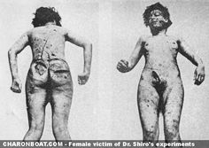 Female victim of the experiments at Unit 731