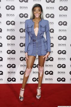 winnie harlow - Vitiligo (vit-ih-LIE-go) is a disease that causes the loss of skin color in blotches. The extent and rate of color loss from vitiligo is unpredictable. The disorder affects all races and both sexes equally, however, it is more noticeable in people with dark skin.