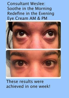 Absolutely stunning one week results of my team mate Weslee! She has been using Soothe in the morning, Redefine at nights and the Multifunction Eye Cream! The puffiness around her eyes are diminishing and her face looks so clear and bright! http://iarman.myrandf.com