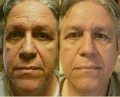 Before and after capricescott.nerium.com