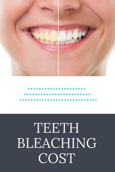 Teeth Bleaching Course Cost #teethbleaching #dentalcourse Tooth Bleaching, Course Catalog, Graduation Year, Electronic Books, What Is Your Name, Hands On Learning, Dental Assistant, Oral Hygiene, Dentistry