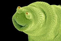 Bdelloidea are microscopic aquatic animals that are related to roundworms