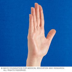 Photos demonstrating knuckle bend exercise