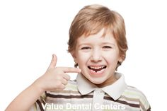 Find best dentist in Gilbert for dental implants.
