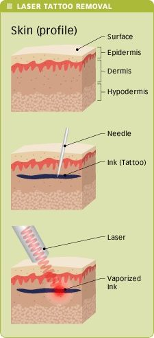 Love this graphic!  Really shows how the laser targets the ink! | tattoos picture laser tattoo removal
