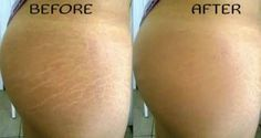 Reduce Stretch Marks With These Natural Remedies by 90%