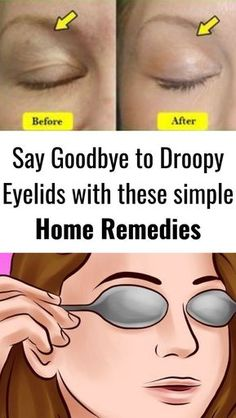 Say goodbye to droopy eyelids with these simple home remedies care dark circles care logo care skin care tips care vision Saggy Eyelids, Drooping Eyelids, Droopy Eyes, Hooded Eyelids, Makeup For Droopy Eyelids, Wrinkle Remedies, Natural Home Remedies, Workout Routines, Beauty Tips