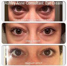 Rodan and Fields eye cream works miracles! Another awesome before and after pic. Contact https://hellogorgeouslove.myrandf.com