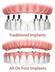All On Four Dental Implants Versus Traditional Implants