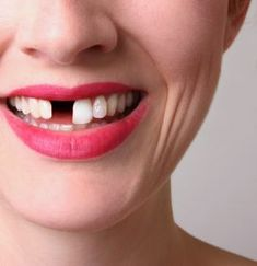 Missing Teeth ??? Missing a tooth ? Regain your confidence with dental implants. Dental implants are safe, predictable and functional replacements for missing tooth, teeth. Read on to know the latest advances in dental implants.http://www.allsmilesdc.org/dental-implants-faqs/  . #DentalImplants #Bangalore