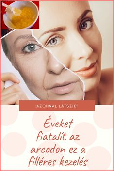 Nasolabial Folds, Health 2020, Les Rides, Hacks, Massage, Skin Care, Health Fitness, Hair Beauty, Makeup