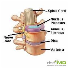 Chiropractic care is a non-surgical treatment option for herniated discs. But what is a chiropractor's approach to treating a herniated disc? Spinal Nerve, Spinal Cord, Chiropractic Treatment, Chiropractic Care, Cervical Disc, Cervical Pain, Intervertebral Disc, Physical Therapy, Nursing